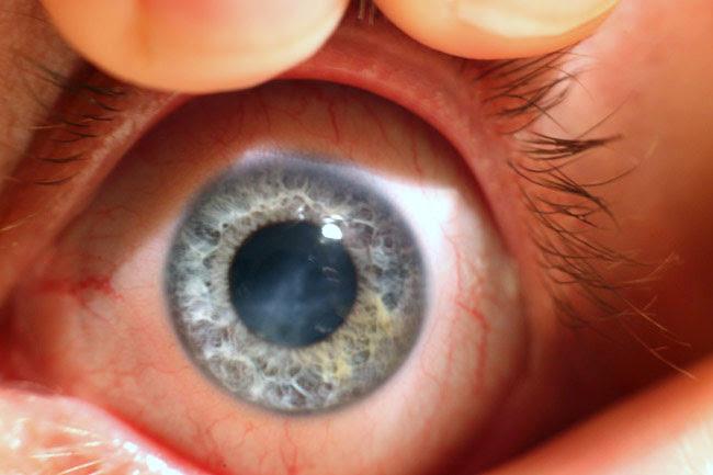 قرنیه چشم (3)