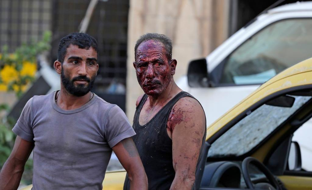 انفجار در بیروت 3