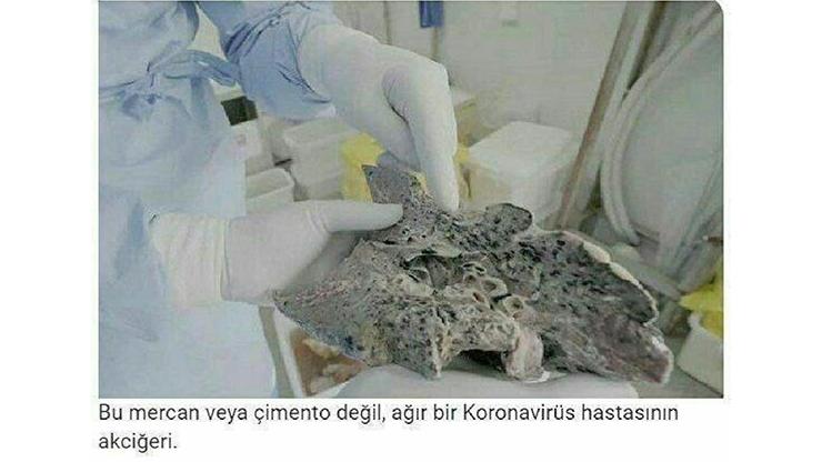 عکسی باورنکردنی از ریه یک بیمار شدید کرونایی
