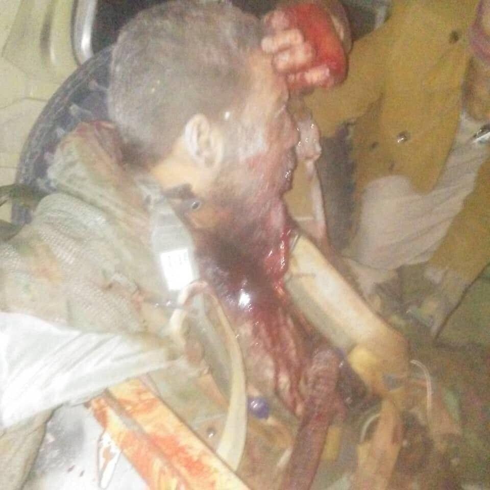 تصویری از خلبان سعودی اسیر شده توسط نیروهای یمنی