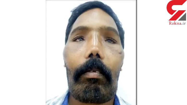 چهره این مرد در 18 سالگی وحشتناک شد ! + فیلم و عکس