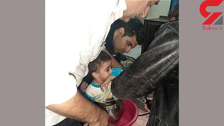 کودک خردسال تهرانی در زودپز گرفتار شد ! + عکس