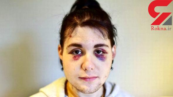 ضرب و شتم شخصی در اتوبوس که هم دختر بود هم پسر +عکس