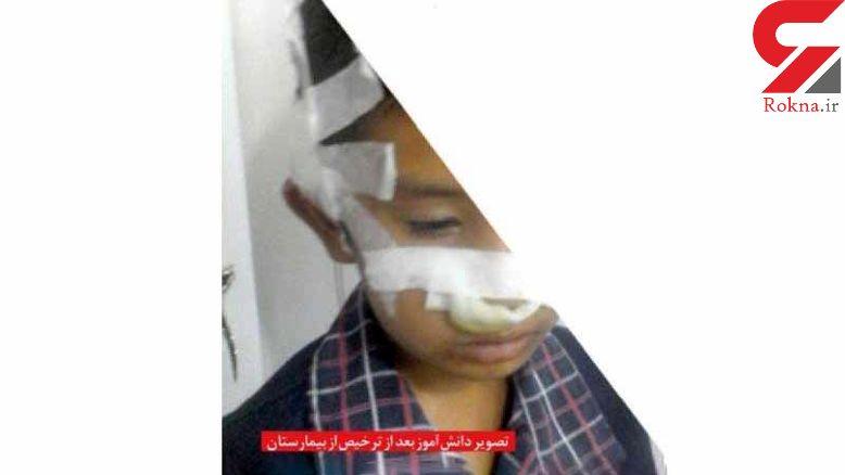 عکس تلخ تنبیه دانش آموز مشهدی / صورتش لت و پار شد! + عکس