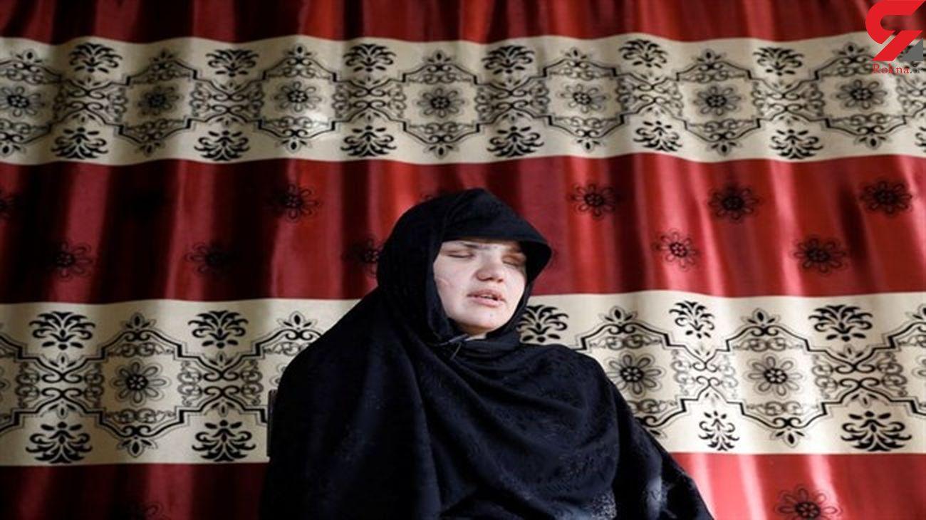 چشمهای خاطره ۳۳ ساله  از حدقه درآمد + عکس زن افغانستانی