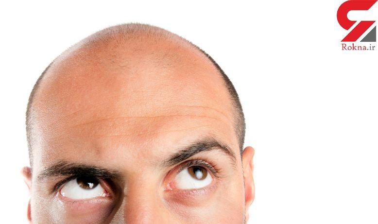ارتباط کاهش وزن با ریزش مو