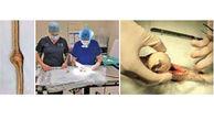 جراحی مار شکمو + عکس