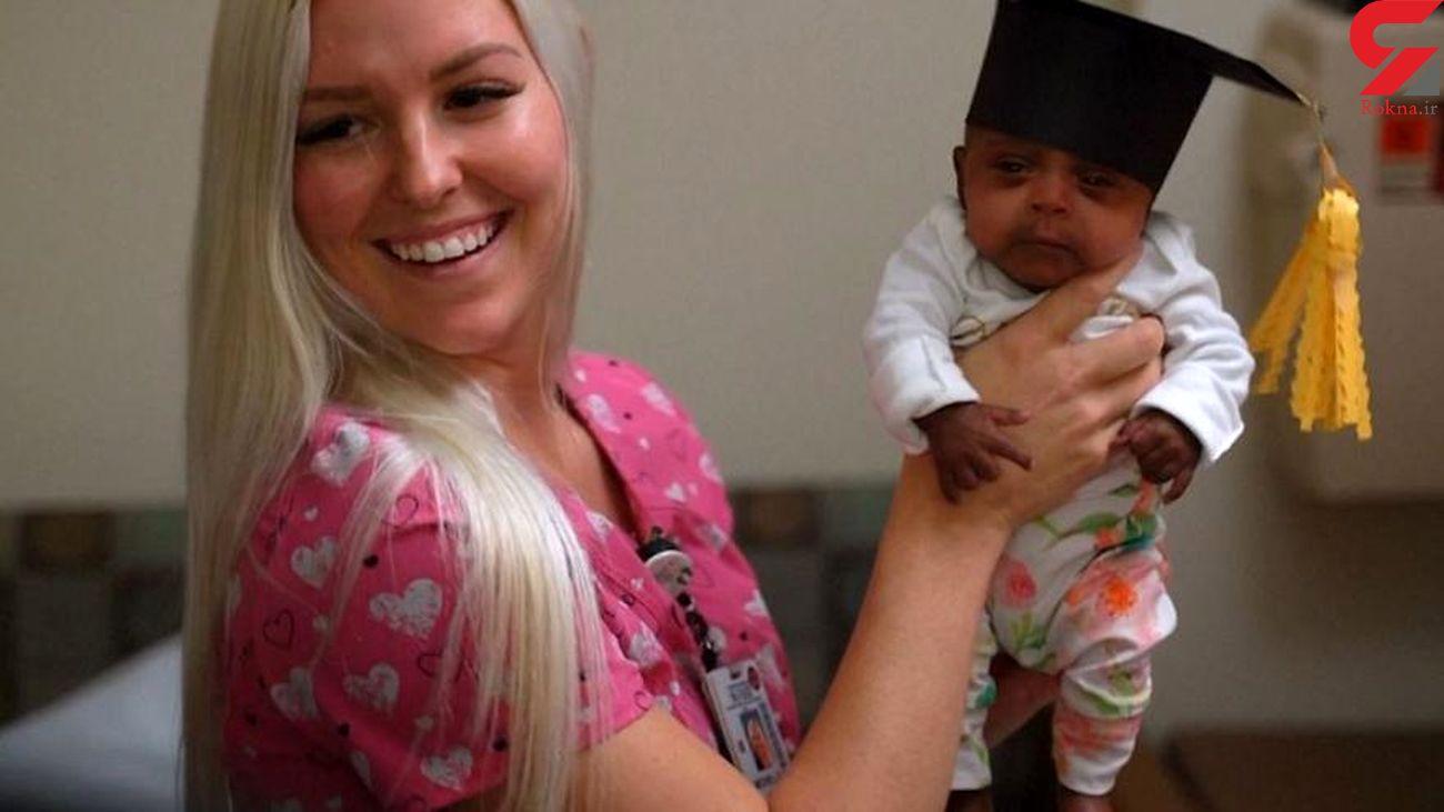 مرخص شدن نوزاد سیبی پس از چندماه از بیمارستان+عکس