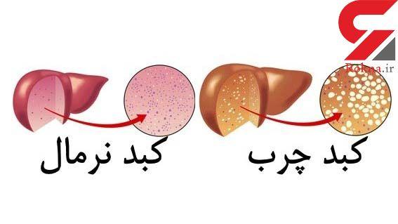 ابتلا به کبد چرب در کمین دیابتی ها