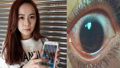 پخته شدن چشم دختر جوان با نور موبایل + عکس
