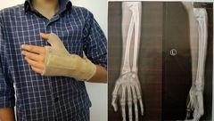 کتک خوردن وحشتناک دانش آموز 14 ساله به دست معلم قمی + عکس