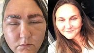 Woman, 34, claims she looked like a 'Space Raider alien' after an allergic reaction to salon dye caused her face to balloon in size and BURNED her eyebrows - and they took three months to grow back