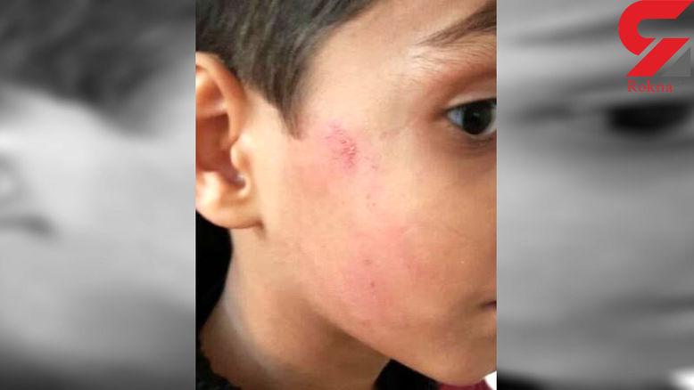 پیچیده شدن پرونده معلم خشن در قزوین
