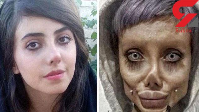 دختر ایرانی بالاخره شبیه آنجلینا جولی شد + عکس   رکنا