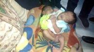 تولد دوقلوهای به هم چسبیده با جنسیت نامعلوم ! در هند + عکس