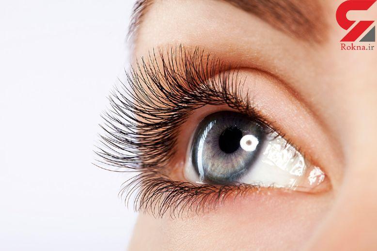 تاثیر نور خورشید در پیری پوست دور چشم
