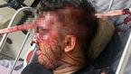فرو رفتن میله آهنی در جمجمه احمد / او زنده ماند + عکس باورنکردنی