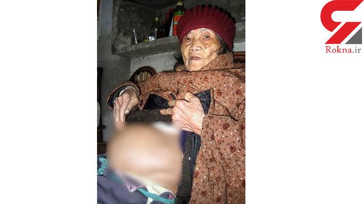 زن 92 ساله جنین سنگی زایمان کرد ! + عکس