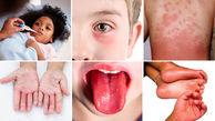 ضایعات پوستی کرونا در کودکان شدیدتر است / به شکل سندرم کاوازاکی بروز پیدا می کند