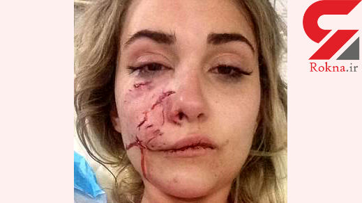 حمله سگ وحشی به خانم مدلینگ / صورت این دختر 19 بخیه خورد +عکس