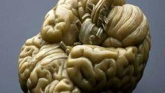 هوش انسان از روی تصاویر مغز اندازه گیری می شود