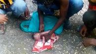 مورچهها نوزاد دختر را زنده زنده خوردند! + تصاویر