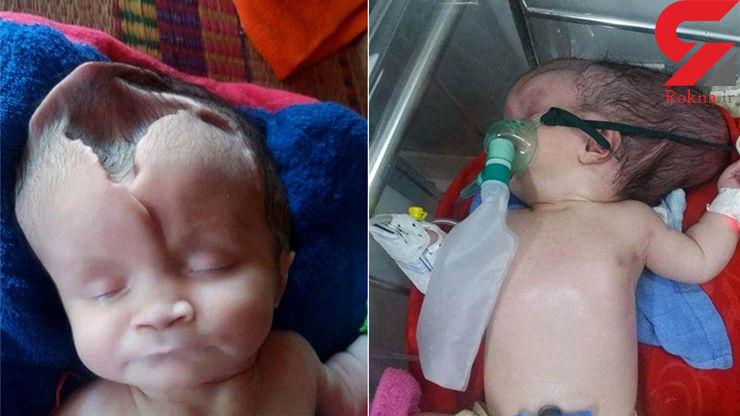 جمجمه این نوزاد نصفه است + عکس باورنکردنی