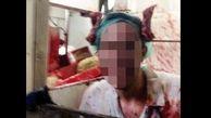 عکسی خون آلود که جنجال به راه انداخت ! + جزییات