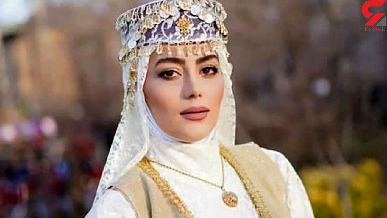 عکس جدید هدیه بازوند (روژان نون خ) بعد از عمل زیبایی + عکس عشق های زندگی بازوند