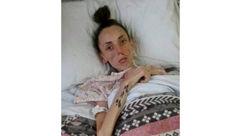 دختر 15 ساله ای که با رژیم لاغری شبیه به پیرزن 60 ساله شد+عکس