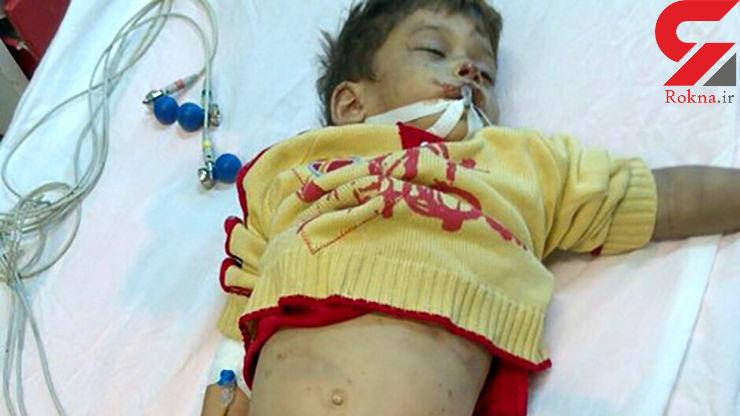 مرگ تلخ پسر 4 ساله اصفهانی زیر شکنجه های یک زن + عکس