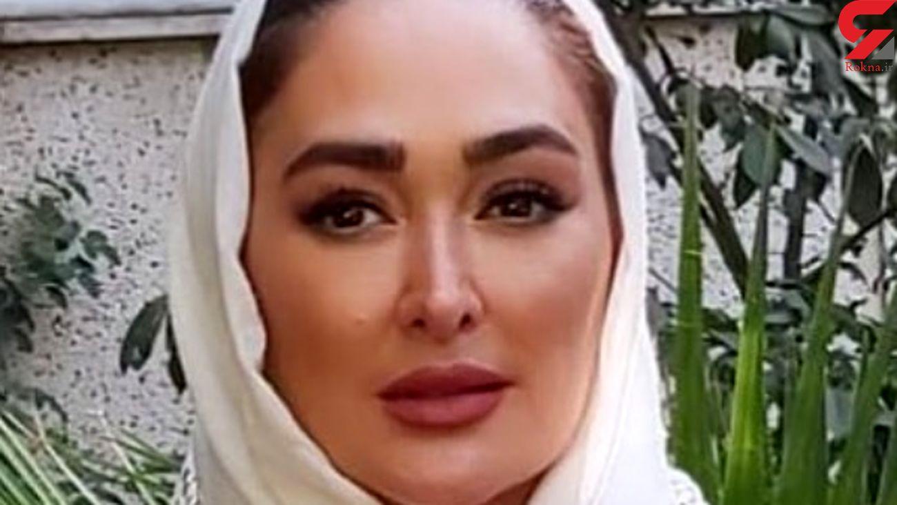 عکسی از الهام حمیدی با صورت کبود