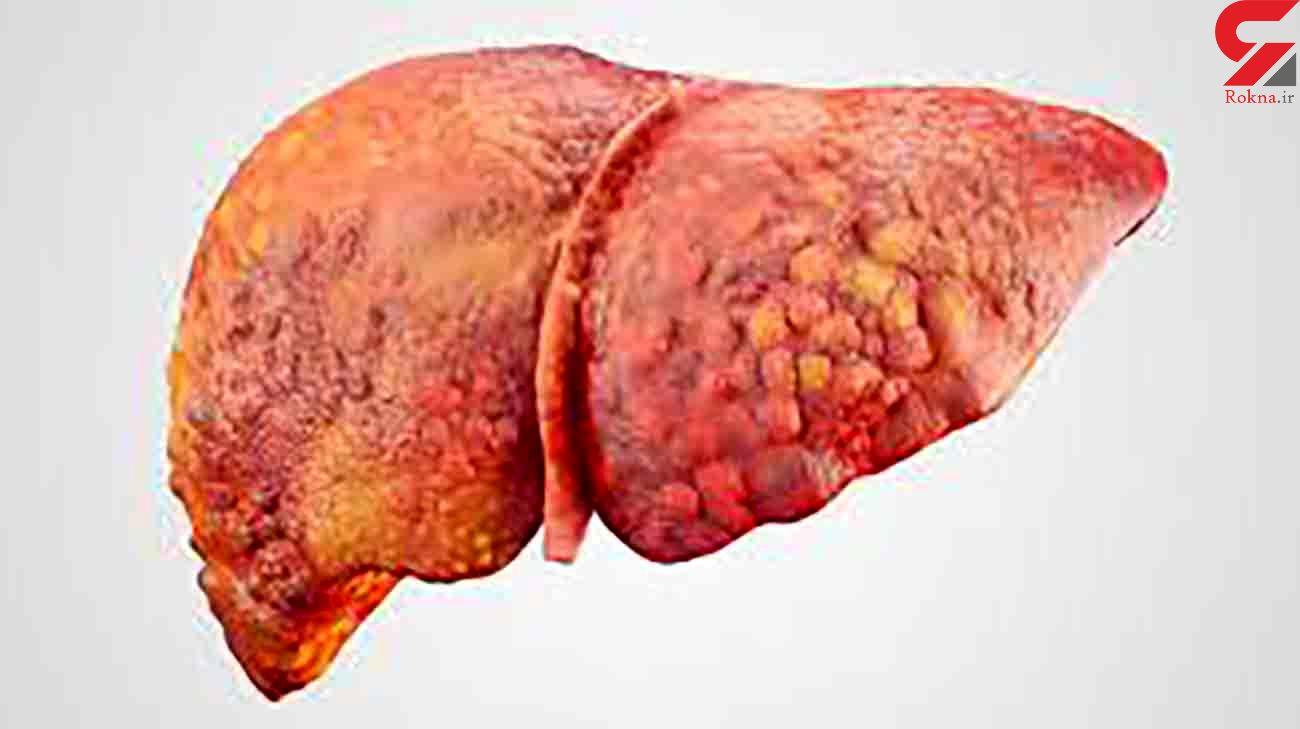 خوراکی های موثر در درمان کبد چرب