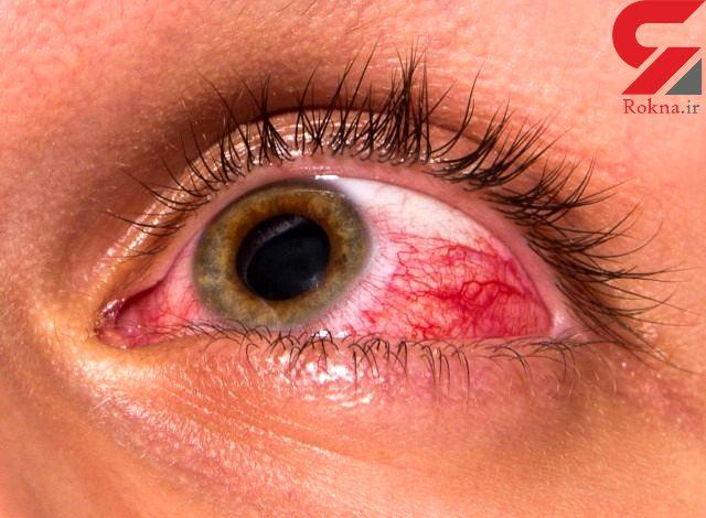 خطر زخم قرنیه با لنزهای دائمی