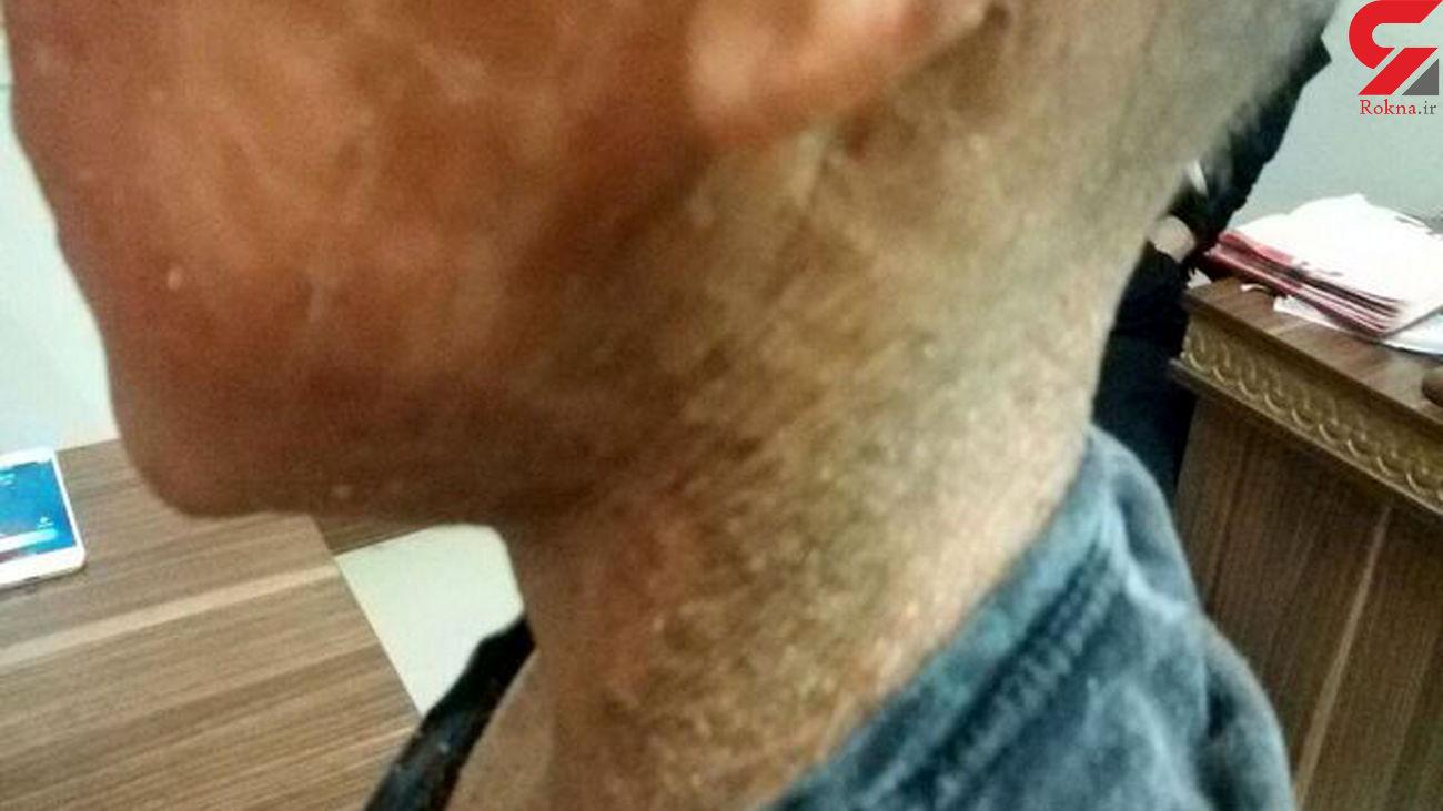 بیماری پوستی اکتیوز چیست؟/ تصاویر تلخ از بیماری اکتیوز