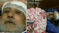آخرین وضعیت پدربزرگ اهورا بعد از حادثه دیشب + عکس