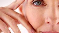 درمان افتادگی پلک با ترفندهای خانگی
