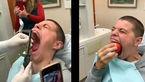 دهان گشادترین فرد در جهان کیست؟ + فیلم
