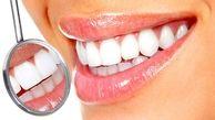 سفید کردن دندان ها با ترفندهای خانگی
