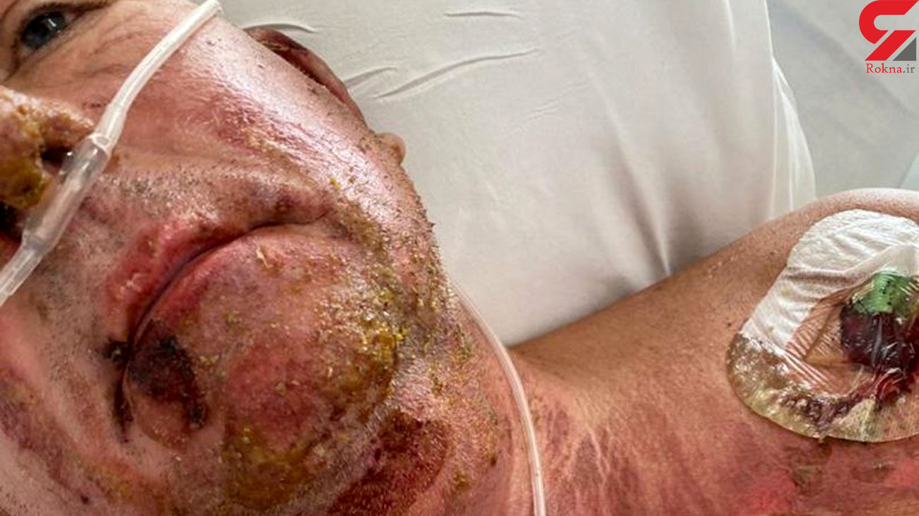 Dad suffers horror injuries after setting himself on fire in freak gardening accident