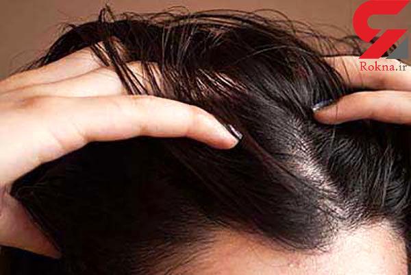 خلاصی از شر موهای چرب با درمان های خانگی