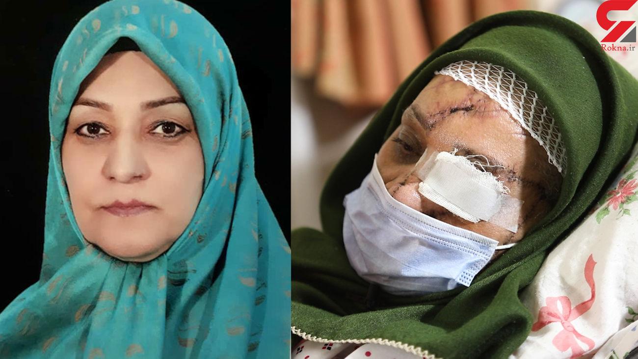 ترسناکترین سرنوشت یک زن ایرانی / اشرف سادات حسینی تکه تکه شد اما زنده ماند + عکس و فیلم 16+