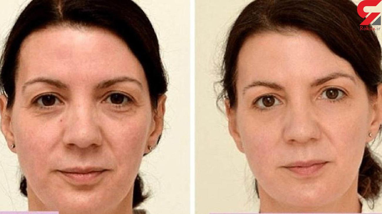 چهره یک زن پس از نوشیدن آب خالی به مدت یک ماه+عکس