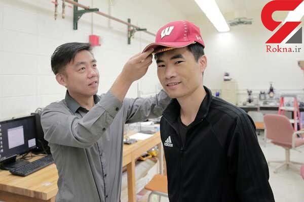 تولید دستگاه شبیهسازی رشد مو سازگار با شرایط خاص پوست