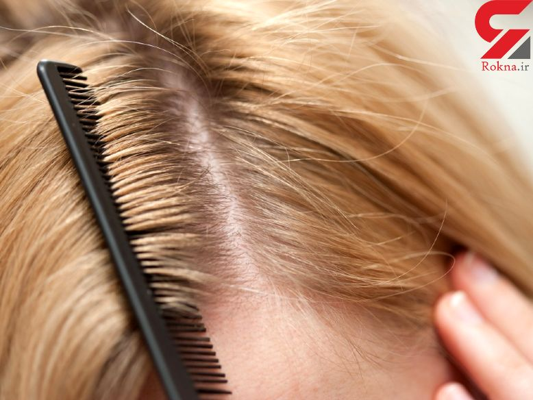 چرا پوست سر حساس می شود؟/ریشه های خارش کف سر از کجاست؟