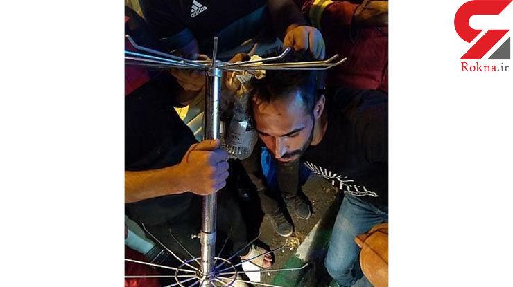 زنده ماندن معجزه آسای مرد تهرانی بعد از فرو رفتن میله در سرش + عکس