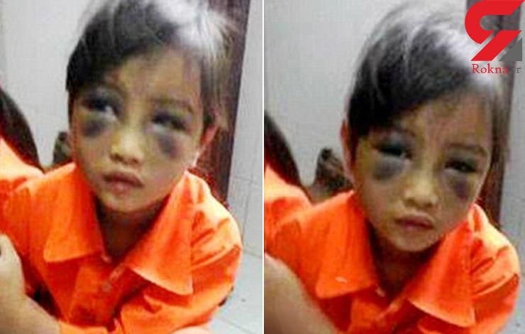 دستگیری معلم به خاطر تنبیه هولناک یک کودک + عکس