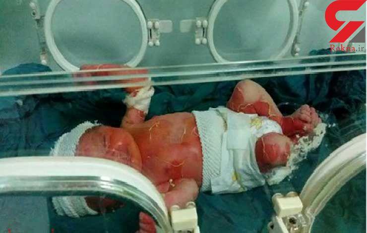پرونده سوختگی نوزاد سه روزه در انتظار نظر پزشکی قانونی