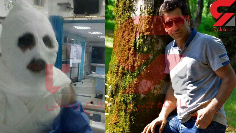 مرد همسایه پارچ پارچ اسید به زن و شوهر جوان پاشید! /در آمل رخ داد + عکس