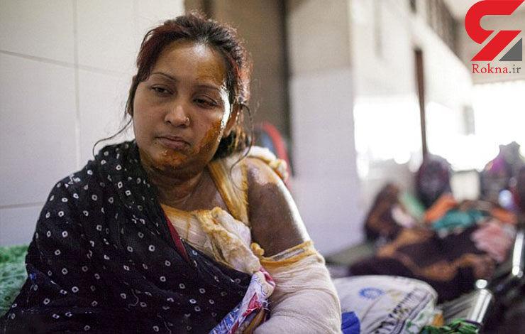 اسیدپاشی مرد بنگلادشی به همسرش